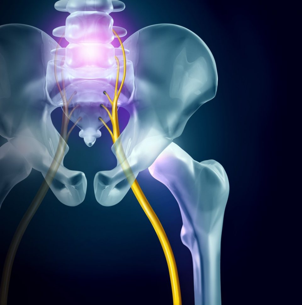 5 Things You Need to Know About Sciatica