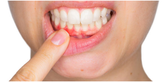 9 Simple Tips To Improve Your Dental Health